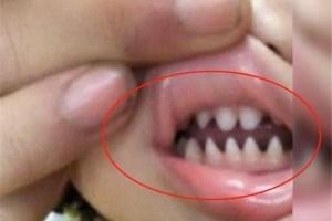 宝宝长了一口鲨鱼牙带去查看后医师的话让妈妈懊悔不已