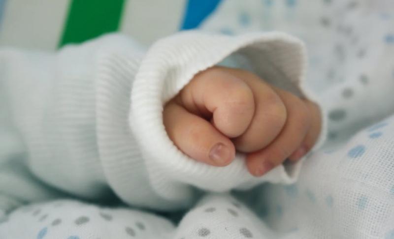 婴幼儿黄疸有何症状体征婴幼儿黄疸有哪些治疗方法
